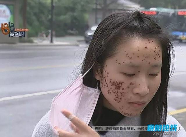 美女想在美发店剪刘海出来后满脸疤